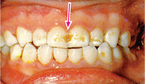image of child's teeth with brown spots that don't rub off.