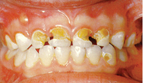 image of child's teeth with advanced decay.