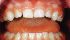 image of healthy teeth